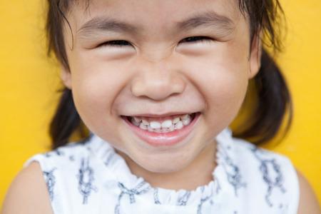dientes sanos: cerca de la cara del chico asiático con dientes cara sonriente de la cara de emoción felicidad en el uso de la pared de color amarillo para los niños encantadora emoción y el tema de la salud dental