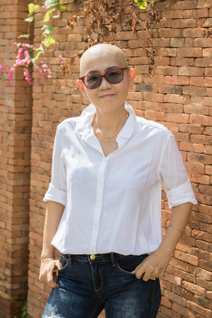 mujer alegre: confianza en uno mismo retrato de la mujer asiática con la cabeza calva después del ciclo de tratamiento del cáncer de la medicina química