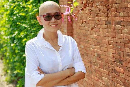 肖像画がん化学薬品治療コース後の禿げ頭とアジアの女性の自信 写真素材