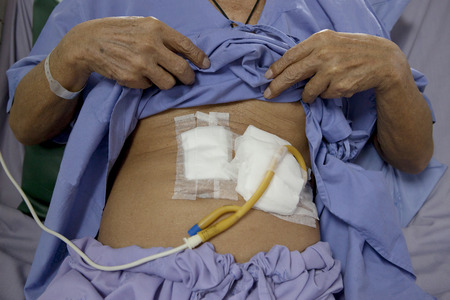 tube feeding man patient stomach lying on hospital bed Imagens