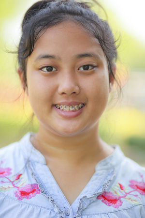close up head of asian teen age with braces dental teeth Stock Photo