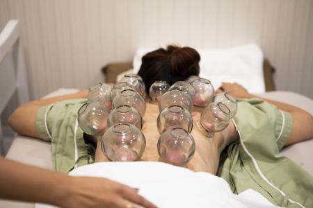 Schröpfen Behandlung am Rücken der Frau Alternative gesunde medizinische Behandlung