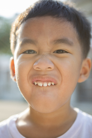 close up face of asian children showing milk tooth