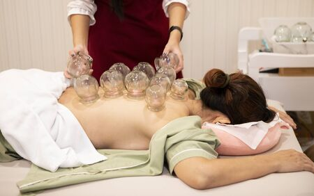 patience undergoing of chinese cupping therapy Standard-Bild