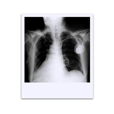 photos of the x-ray film