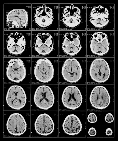 x-ray film of the brain computed tomography Stock Photo