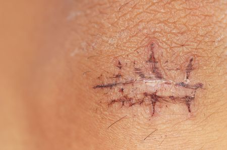 Recovering scar from stitches operation with shallow depth of field