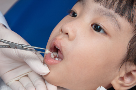 Asian Chinese little girl lying down for tooth extraction at dental clinic Stock Photo