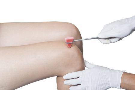 reflex: testing knee reflex on a female patient using a hammer