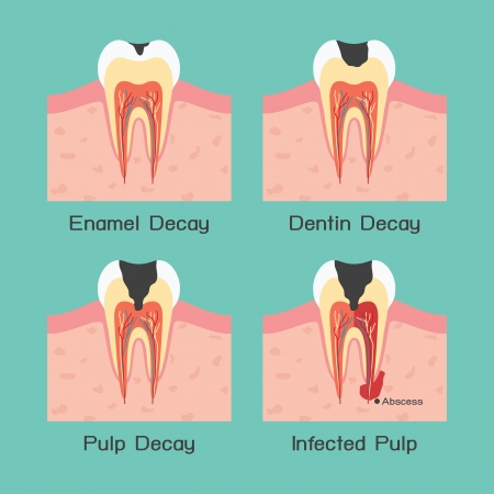 tooth decay: Tooth decay Illustration