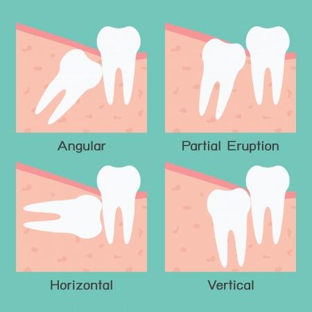 dent douleur: Dent de sagesse Illustration