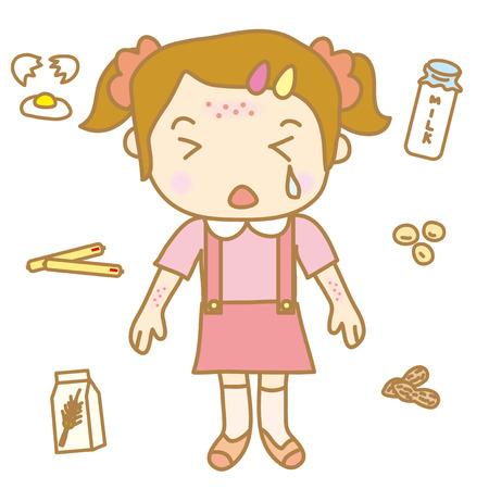 allergic reaction: Children food allergy Illustration