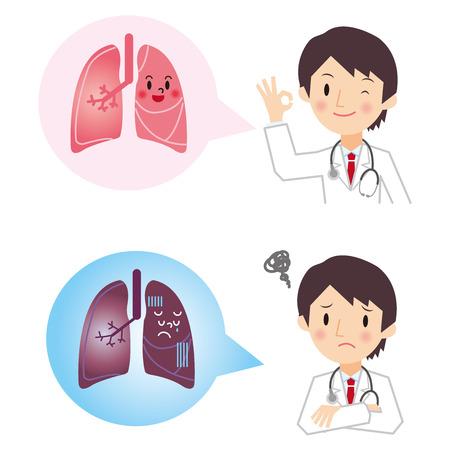 medicina interna: Oigo el resultado del diagn�stico de c�ncer de pulm�n del doctor Vectores