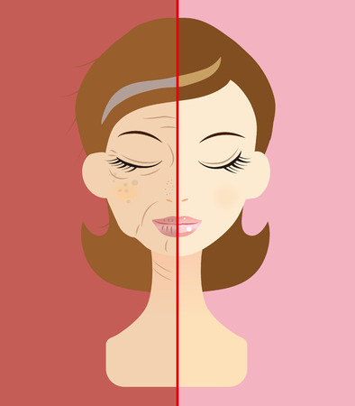pores: Women face the problem of skin trouble