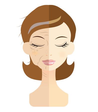 Vrouwen geconfronteerd met het probleem van de huid problemen Stock Illustratie