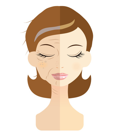wrinkly: Women face the problem of skin trouble