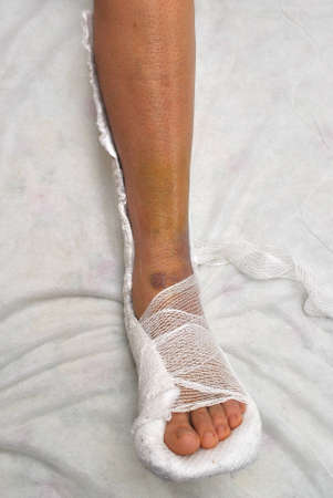Patient with broken leg in cast photo