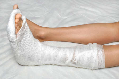 붕대: Patient with broken leg in cast