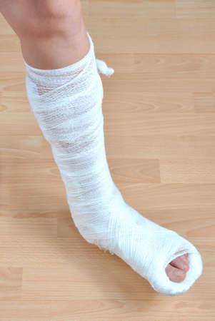 Broken human leg in cast photo