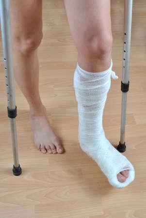 fractura: Paciente con muletas con la pierna rota en colada