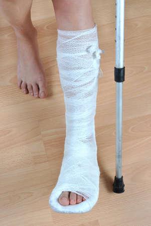 jambe cass�e: Patient avec des b�quilles avec la fracture � la jambe dans le pl�tre