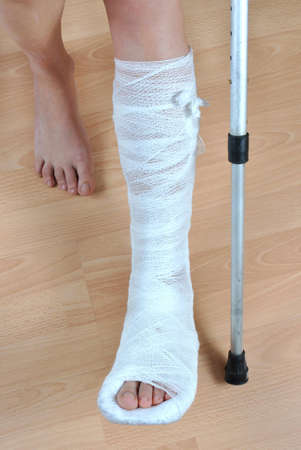 cast: Patient with crutches with the broken leg in cast