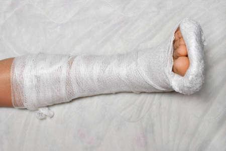 Patient with broken leg in cast Stock Photo - 9331917