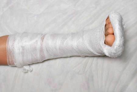 Patient with broken leg in cast Stock Photo - 9331917
