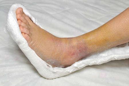 fractura: Paciente con una pierna rota en el elenco Foto de archivo