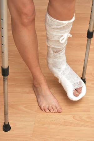 jambe cass�e: Patient avec une jambe cass�e en pl�tre et bandage Banque d'images