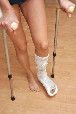 fractura: Paciente con una pierna rota en el reparto y venda Foto de archivo
