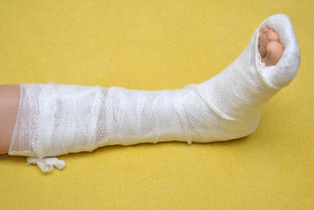 jambe cass�e: Patient avec une jambe cass�e dans le pl�tre Banque d'images