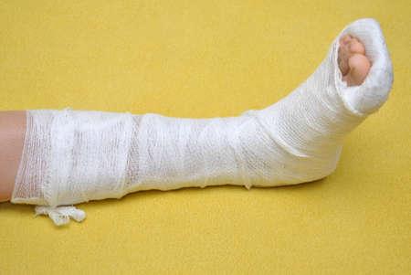 Patient with broken leg in cast photo