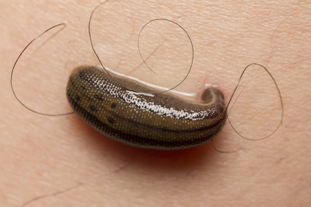 annelida: the blood-sucking leech tucks on the human skin in  tropical rain forest.