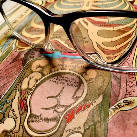 Eyeglasses and antique medical anatomy illustration Stock Photo