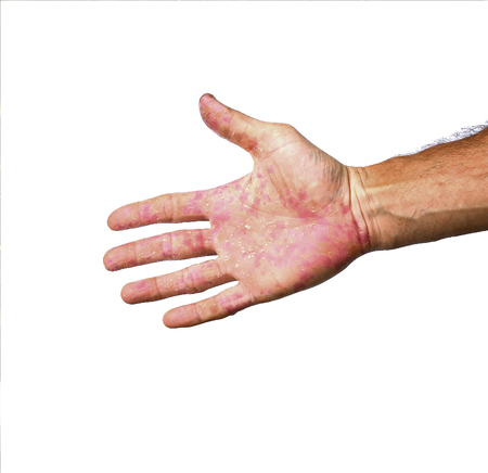 ulcers: Palm patient erythema in red in ulcers from inflammation isolated on white background