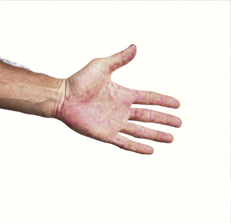 sores: Palm patient erythema in red in ulcers from inflammation isolated on white background