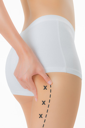 pinching: Woman grabbing skin on her buttock with the black color crosses marking, Lose weight and liposuction cellulite removal concept, Isolated on white background. Stock Photo