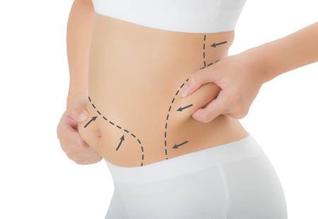 Close up woman grabbing skin on her hip and belly with the drawing black arrows, Lose weight and liposuction cellulite removal concept, Isolated on white background. Stock Photo