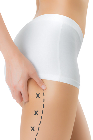 Woman grabbing skin on her buttock with the black color crosses marking, Lose weight and liposuction cellulite removal concept, Isolated on white background. Stock Photo