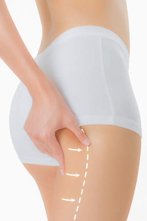 Woman grabbing skin on her buttock with the drawing arrows, Lose weight and liposuction cellulite removal concept, Isolated on white background. Stock Photo