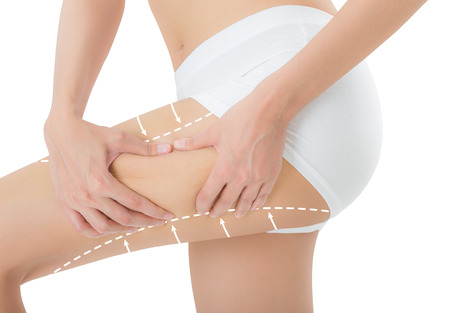 woman grabbing skin on her thigh with the drawing white arrows, Lose weight and liposuction cellulite removal concept, Isolated on white background.