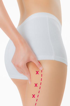 Woman grabbing skin on her buttock with the red color crosses marking, Lose weight and liposuction cellulite removal concept, Isolated on white background.