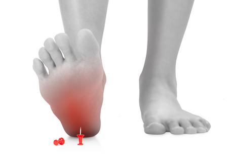 front view of woman's feet stepping on the red push pin, unforeseen concept, black and white color with red highlighted, Isolated on white background. Imagens