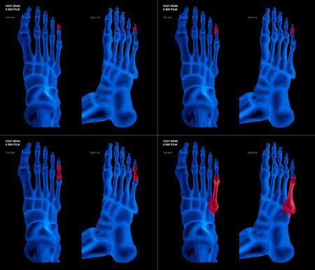 X-ray blue film collection of Little toe foot bone with red highlights on different pain and joint area-top and side view-Healthcare-Human Anatomy and Medical concept-Isolated on black background.