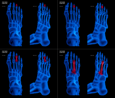 X-ray blue film collection of Middle toe foot bone with red highlights on different pain and joint area-top and side view-Healthcare-Human Anatomy and Medical concept-Isolated on black background.