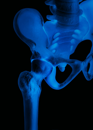 Human hip joint-Bone- X ray blue film-Healthcare-Human Anatomy and Medical concept-Isolated on black background. Stockfoto