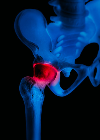 Human hip joint with red highlight on pain area - X ray blue film-Healthcare-Human Anatomy and Medical concept-Isolated on black background. Stock Photo