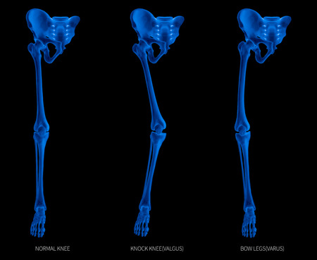 Types disease of lower half limbs or leg bone problem- normal-knock knee and bowlegs or valgus and varus knee- 3D- human anatomy- medical diagram- educational concept- x-ray blue tone color film