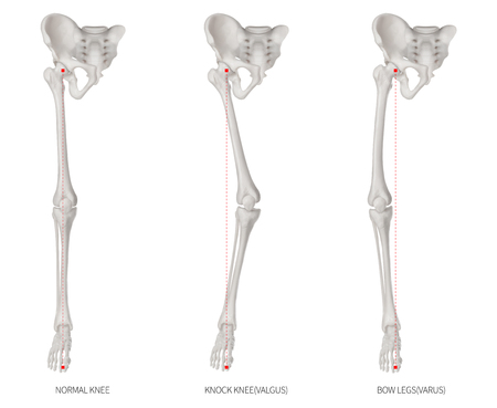 Alignment types disease of lower half limbs or leg bone problem- Normal- Knock knee and Bowlegs or Valgus and Varus knee- 3D medical illustration-human anatomy and educational concept white background